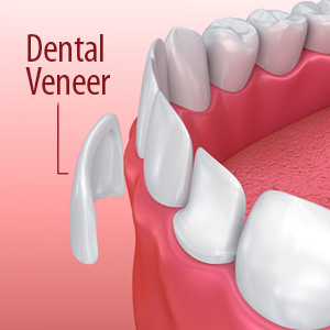 My blog dentist in quincy ma and rockland ma porcelainveneersalessinvasivewaytotransformyoursmile solutioingenieria Image collections