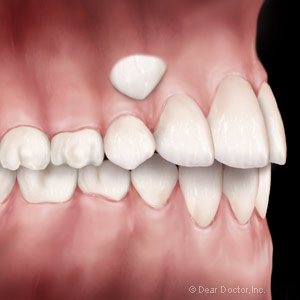 Exposing and Preserving Impacted Canine Teeth - Heritage Grove ...