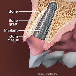 ASolutionforRestoringAdequateBoneforDentalImplants