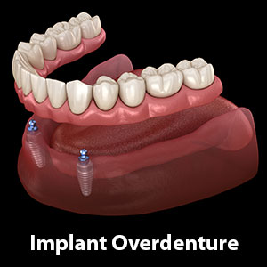 ImplantsMakeDenturesMoreSecureComfortableandBone-Friendly