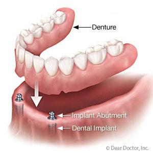 Implant-SupportedDenturesProvideBetterFitandmayStopBoneLoss