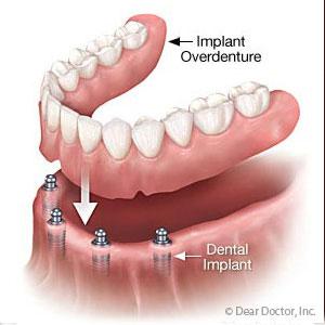 Implant-basedOverdenturesmaybeaBetterLong-TermFitOption