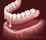 Implant Overdentures in Syracuse NY