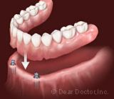 ImplantOverdenturesaMarriageofOptionsforLowerJawToothReplacement