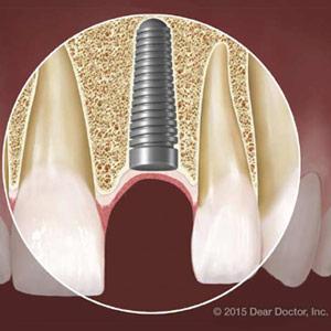 DentalImplantsandDiabetes