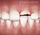 AlternativestoRootCanalTreatmentCanSaveanInjuredImmatureTooth