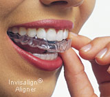 female using invisalign clear aligner