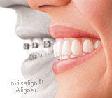 Assured, what Alternatives to braces for adults