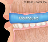 MouthguardsareYourBestProtectionAgainstSports-RelatedDentalInjuries