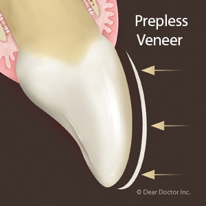 AvoidPermanentToothAlterationWithNoPrepVeneers