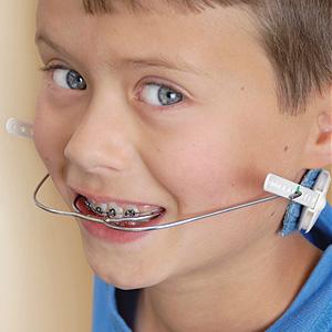 OrthodontistscanUseOtherToolswithBracesforComplexBiteProblems