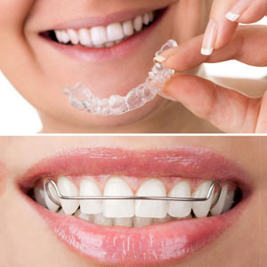 A Retainer Helps you Keep Your New Smile after the Braces