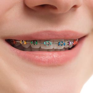 braces and teeth moving