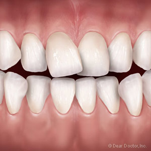 3OrthodonticOptionsforCorrectingBadBites