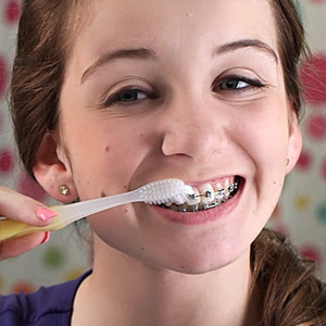 EffectiveOralHygieneisKeytoDiseasePreventionWhileWearingBraces