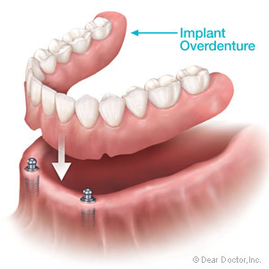 Image result for implant supported dentures