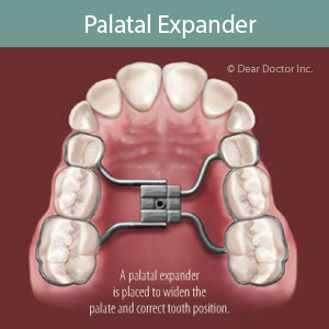 Correct a Cross-Bite by Widening the Upper Jaw with an Expander ...