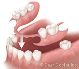 Removable Partial Dentures in Syracuse NY