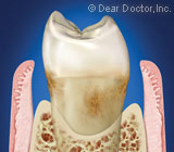 PeriodontalFlapSurgeryAccessesHiddenInfectioninGumTissues