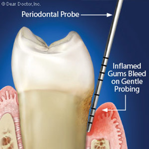 UncoveringEarlyGumDiseaseThroughPeriodontalProbing