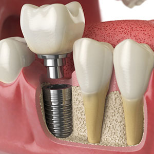 4ReasonsDentalImplantsAreaWiseChoiceforToothReplacement