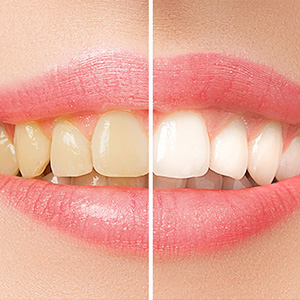 3ReasonsYouShouldConsiderToothWhitening