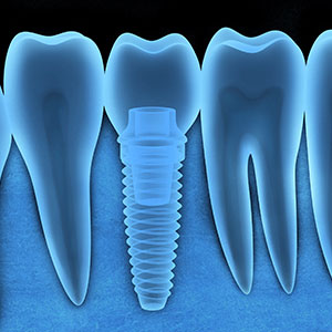3BenefitsofDentalImplantstoReplaceMissingTeeth
