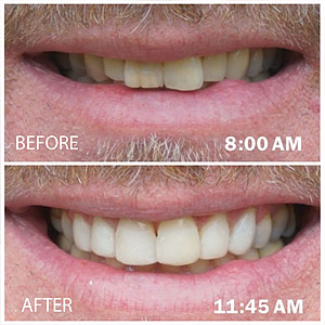 DirectVeneersOfferaQuickandAffordableAlternativetoTraditionalVeneers