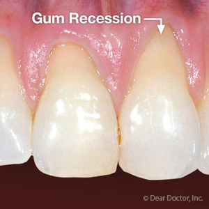 DontletPeriodontalDiseaseCauseYourGumstoRecede