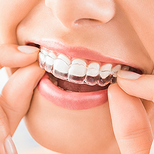 Good Reasons for Choosing Clear Aligners for Orthodontic Treatment -  General and Cosmetic Dentist
