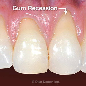 4CommonCausesforGumRecession