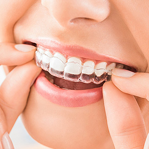 Retain Your New Smile After Braces with a Retainer - Eastman ...
