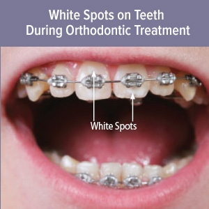 How To Reduce Tooth White Spots While Wearing Braces Mvp Smiles