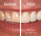 Before & After Picture of Veneers