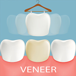 AvoidPermanentToothAlterationwithNo-PrepVeneers