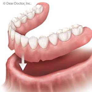 RemovableDenturesRemainaViableOptionforPeoplewithTotalToothLoss