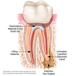 root canal treatment procedure step by step pdf
