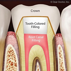 3 Factors That Could Affect the Success of a Root Canal