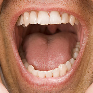 KeepYourSalivaFlowing-YourOralHealthDependsonit