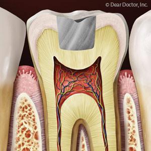 DentalAmalgamContinuestobeaDurableandSafeToothFilling