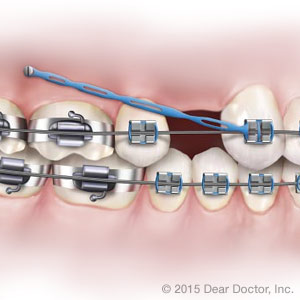 Orthodontic Treatment Toronto CA