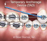 OrthodonticTreatmentwithTADS