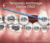 AnchorageDevicescanaddStabilityDuringOrthodonticTreatment