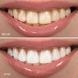Determining The Right Whitening Approach Is Key To Brightening A