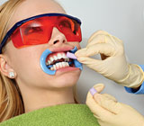 Teeth Whitening 5 Treatment Facts