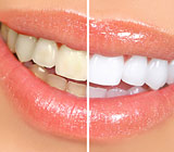 TestYourKnowledgeFrequentlyAskedQuestionsAboutToothWhitening
