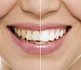 HomevsProfessionalTeethWhitening-WeighingYourOptions