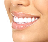 Teeth Whitening Treatment Petoskey MI