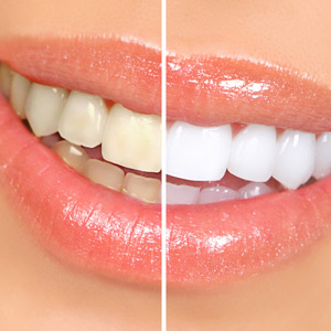 teeth whitening.