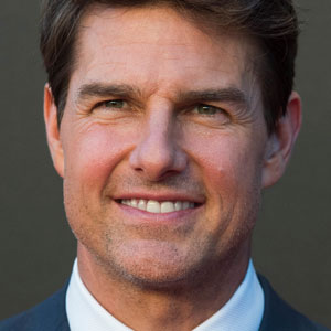 TomCruiseTransformedHisSmileThroughBracesandsoCanYou